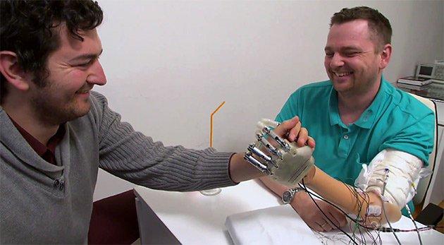 Бионические протезы в России / Geektimes