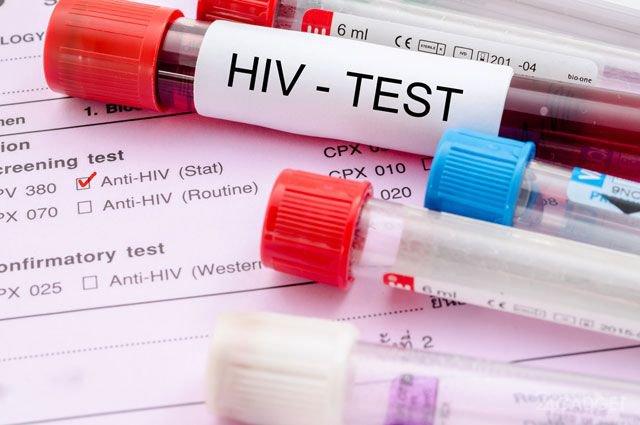 ВИЧ оказался опаснее, чем считалось