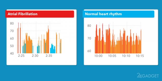 Apple Watch выявляют нарушение сердечного ритма с 97% точностью (2 фото)