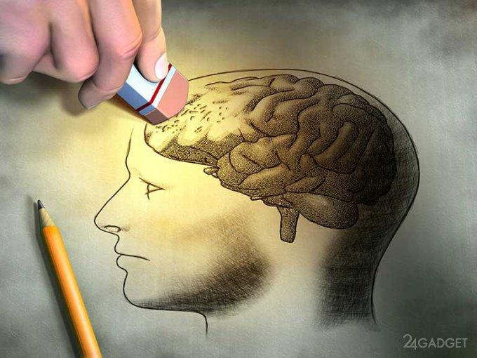 Новая методика приостановит развитие Альцгеймера