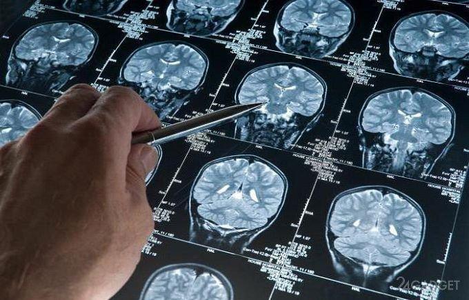 Заблаговременно предупредить об Альцгеймере поможет нейросеть
