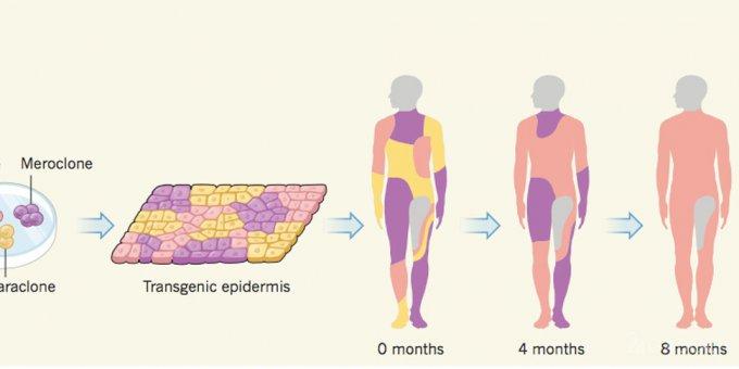 Генномодифицированная кожа спасла ребенку жизнь