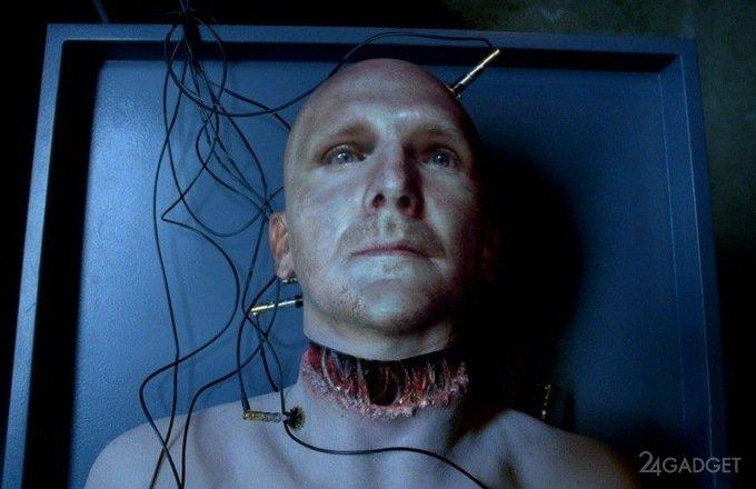 Пересадка головы к другому телу: как отреагирует мозг?