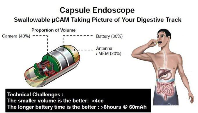 Капсула с панорамной съёмкой заменит зонды-эндоскопы (5 фото)