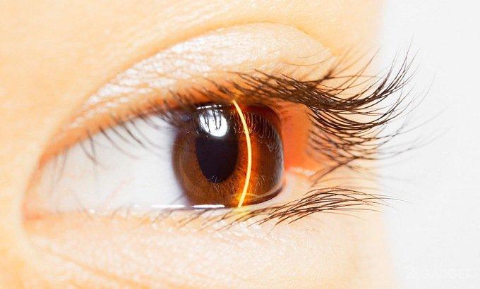 Алгоритм Google определит сердечные недуги по глазам (3 фото)