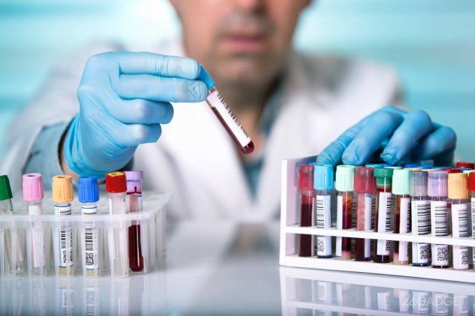 Ученые научились определять по крови, насколько поврежден мозг