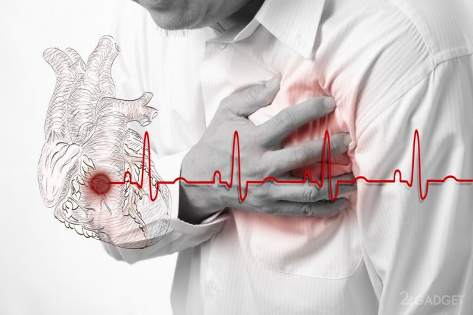 Генетический тест GRS сигнализирует о риске инфаркта (3 фото)