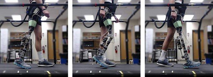 ИИ адаптирует протез под конкретного пациента за считанные минуты