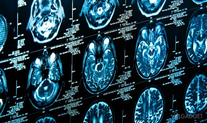 В мозгу обнаружен выключатель сознания (2 фото)