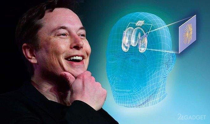 Мозговые чипы от Илона Маска позволят прослушивать музыку