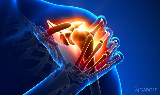 Разработан метод обезболивания на основе радиоволн для больных артритом