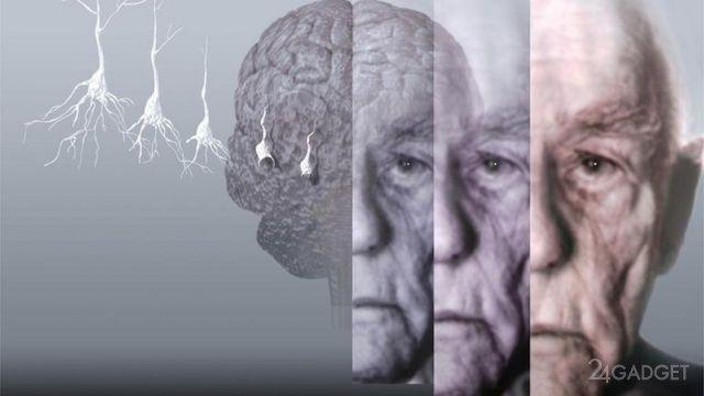 Россияне приблизились к излечению болезней Альцгеймера и Паркинсона
